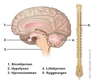 tumor lillehjernen symptomer