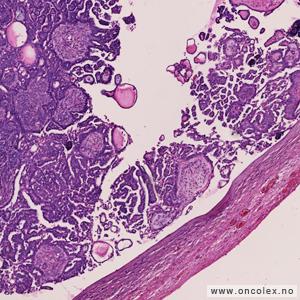 hvor ligger livmoren cyster på eggstokkene smerter