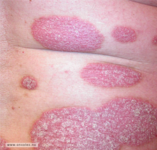 Pasient med psoriasis.