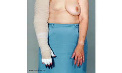 lymfevæske efter operation
